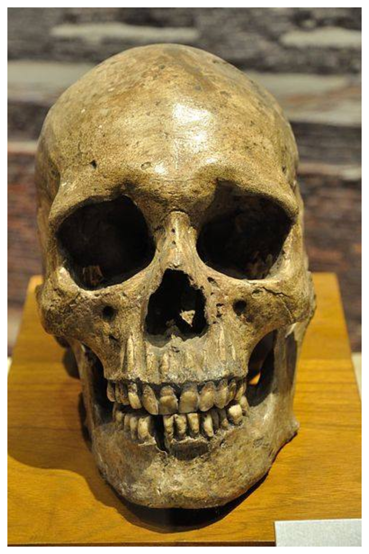 Human Skull - 2600-1700 BCE from Harappa.'' Indian Museum, Kolkata
