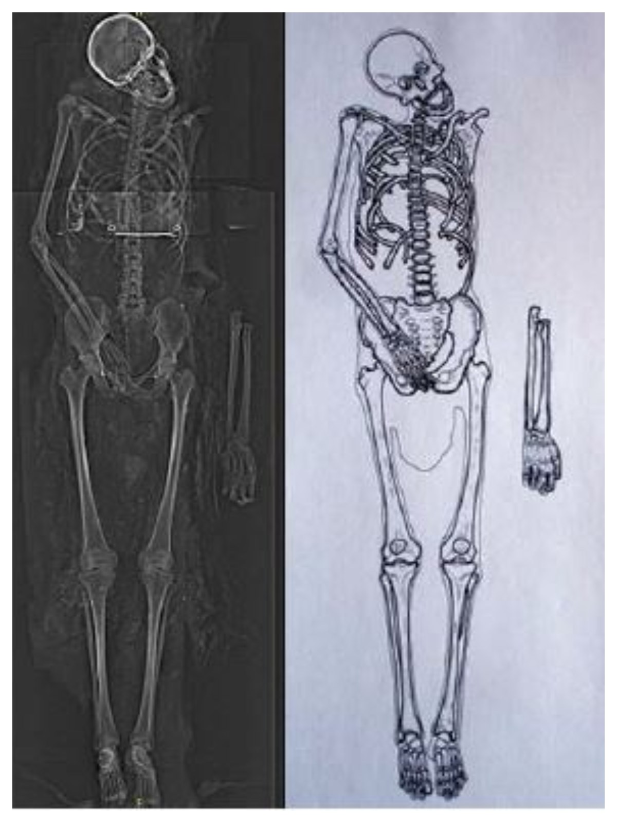 XRay of Mummy